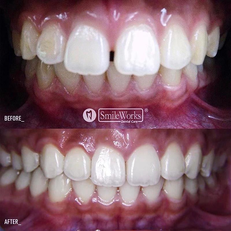 Treatment-Invisalign2