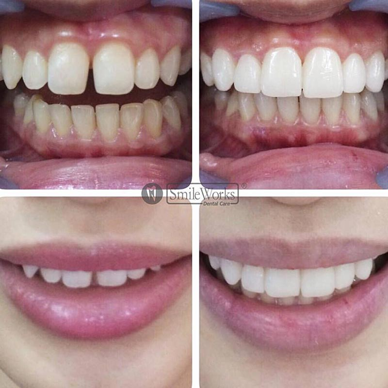 Treatment-Veneer-2