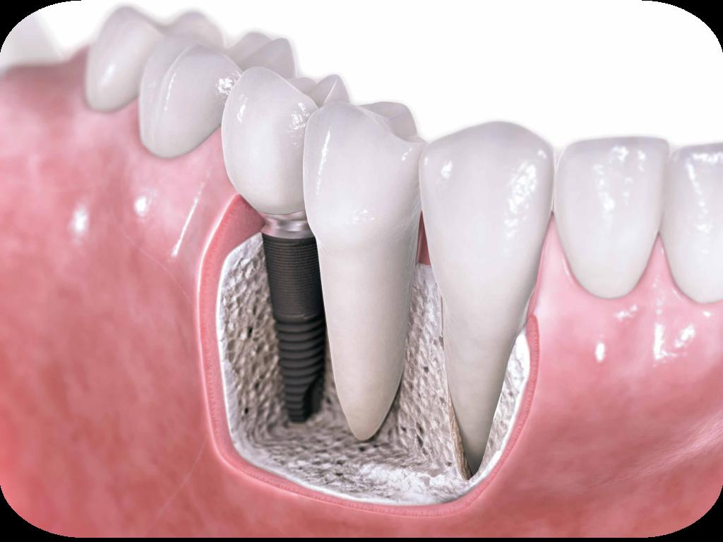 1dental-implants